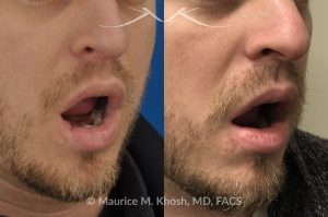 Photo of a patient before and after a procedure. Scar revision of lower lip - This gentleman sustained a dog bite injury resulting in loss of part of his lower lip. The injured site was repaired in the emergency room. He then visited us for improvement of a depressed and notched appearing lip scar. The right side picture shows the results of the scar revision for his lip, resulting in a minimally noticeable vertical scar of the lip.