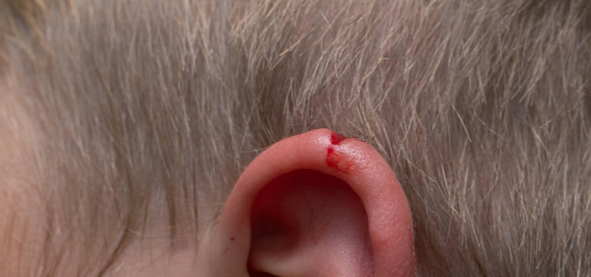 Ear Skin Laceration