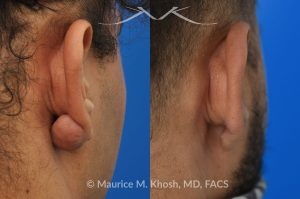 Photo of a patient before and after a procedure. Keloid of earlobe - This 30 year old complained of developing a keloid scar on his earlobe following ear piercing. Keloid surgery in Manhattan office, followed by a series of injections resulted in complete restoration of the natural appearing earlobe.