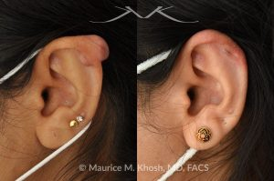 Photo of a patient before and after a procedure. Keloid scar of the upper ear -  This delightful patient had formed a keloid after an ear piercing in the upper part of her ear. Keloid removal allowed restoration of a normal appearing ear. She is ecstatic with her results.