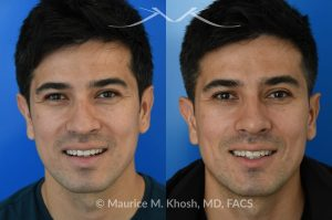 Photo of a patient before and after a procedure. Liquid rhinoplasty - This delightful patient disliked the nasal hump and droopy nasal tip. He was not ready for a surgical rhinoplasty. We performed liquid rhinoplasty in New York to elevate his nasal tip and straighten the nasal hump. Note that the nose tip does not droop even when he smiles.