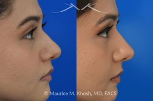 Photo of a patient before and after a procedure. Female patient before and after Liquid rhinoplasty - Liquid rhinoplasty in NYC for subtle improvement of the nasal tip and the bridge of the nose using facial fillers. Precise placement of minimal amounts of facial filler into the bridge of the nose and the nasal tip allowed our delightful patient to achieve a smooth nasal profile and a more proportioned and slightly elevated nasal tip.
