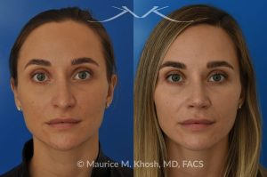 Photo of a patient before and after a procedure. Rhinoplasty (to elevate and refine nasal tip) - This delightful 30 year-old was interested in rhinoplasty in New York, to elevate and refine her nasal tip. An open approach rhinoplasty was used to rotate and shorten the tip. Providing the results which perfectly matched her expectations .