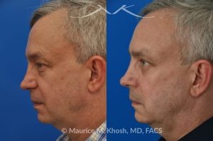 Photo of a patient before and after a procedure. Upper and lower blepharoplasty - This delightful 55 year old dislikes the puffy upper and lower eyelids which made him look tired and 'old'. He underwent upper and lower blepharoplasty in Manhattan. The excess skin and fat was removed from the upper eyelid through a perfectly hidden incision. The lower eyelid excess fat was removed from inside the eyelid, so as not to leave any scars.