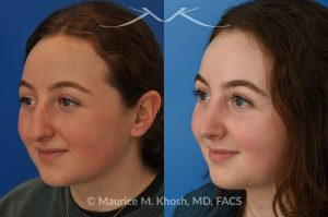 Photo of a patient before and after a procedure. Rhinoplasty for droopy tip and nasal hump - This delightful 18 year old was not happy with the external appearance of her nose. She disliked the nasal hump, the droopy tip, and the ''unrefined'' shape of her nose. She underwent an open approach rhinoplasty in New York. The dorsal height was reduced, the nasal tip was elevated, and the tip was narrowed and refined. The post op pictures show her at 6 months post op. She is ecstatic with the outcome of her rhinoplasty.