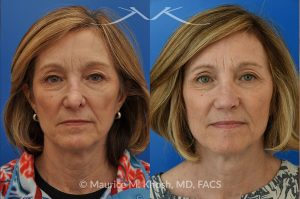 Photo of a patient before and after a procedure. Secondary repair of nostril retraction after attempted Mohs repair of the lower nose - This lovely 60 year-old had undergone repair of Mohs cancer removal from the left lower nose, by another surgeon. Unfortunately, this resulted in severe retraction of the left nostril and an unacceptable nasal deformity.  Rhinoplasty to address nostril retraction was performed in Manhattan. Cartilage graft to the left nostril and composite graft (combination of skin and cartilage graft) to the inside edge of the nostril, helped to restore normality to the nose. The post op pictures are 6 months following her rhinoplasty.