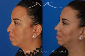 Photo of a patient before and after a procedure. Rhinoplasty to refine and elevate the tip and eliminate nasal hump - This lovely patient sought rhinoplasty in our Manhattan office to address a moderate size hump and to improve the nasal tip. She disliked the droopy nasal tip with poor definition. Rhinoplasty performed through the open approach allowed refinement and rotation of the nasal tip, and smoothing of the nasal hump.
