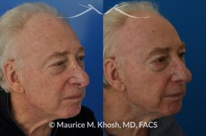 Photo of a patient before and after a procedure. Nasal valve repair and revision rhinoplasty - This 73 year old had previously undergone rhinoplasty in his 20's. The surgery had left his nose deformed and severely obstructed. Revision rhinoplasty and repair of nasal vestibular stenosis was accomplished with use of cadaver rib cartilage. Revision surgery helped to restore a natural shape to the nose, and alleviate his breathing issues. He is delighted with the surgical results.