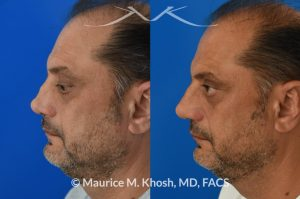 Photo of a patient before and after a procedure. Revision rhinoplasty, nasal valve reconstruction - This 53 year old had originally undergone rhinoplasty over 30 years ago. Surgery had left his nose pinched, depressed, short, and deformed. He had severe nasal obstruction. Revision rhinoplasty was performed with the use of his own rib cartilage to restore a normal shape to his nose and improve his breathing.