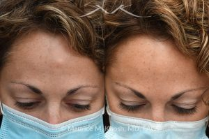 Photo of a patient before and after a procedure. Osteoma - This 43 year old had been bothered by the hard bony bump in the middle of her forehead. She travelled from out of town, for forehead osteoma removal in New York. She could not be more satisfied. The incision in the hairline is invisible six months after surgery.