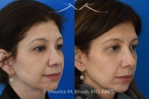 Photo of a patient before and after a procedure. Upper blepharoplasty - This 45 year old was interested in upper eyelid lift in Manhattan to address heavy and tired appearing upper eyelids. Upper blepharoplasty was carried out under local anesthesia as an office procedure. She had minimal bruising and no pain during her recovery. She is ecstatic with her results.